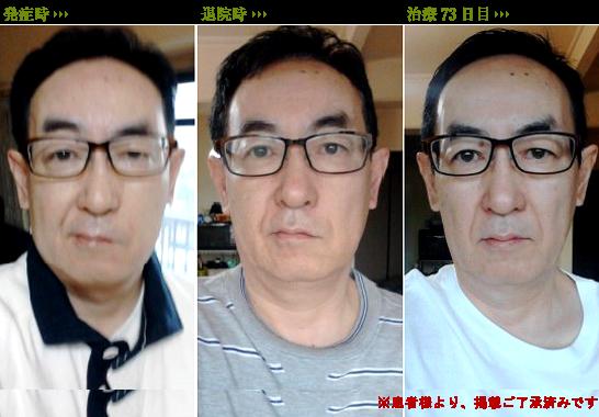 ベル 麻痺 芸能人 顔面麻痺を患った芸能人&有名人15選!衝撃順ランキング【2021最新版...